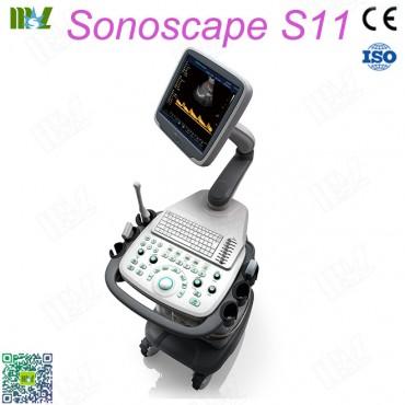 maquina de ultrasonido