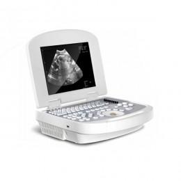computadora portátil máquina de ultrasonido MSLPU28