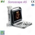 ultrasonido portatil sonoscape a5 lista de precios : ultrasonido abdominal