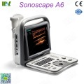 Sonoscape ultrasound sonoscape a6 precio: ultrasonido obstetrico